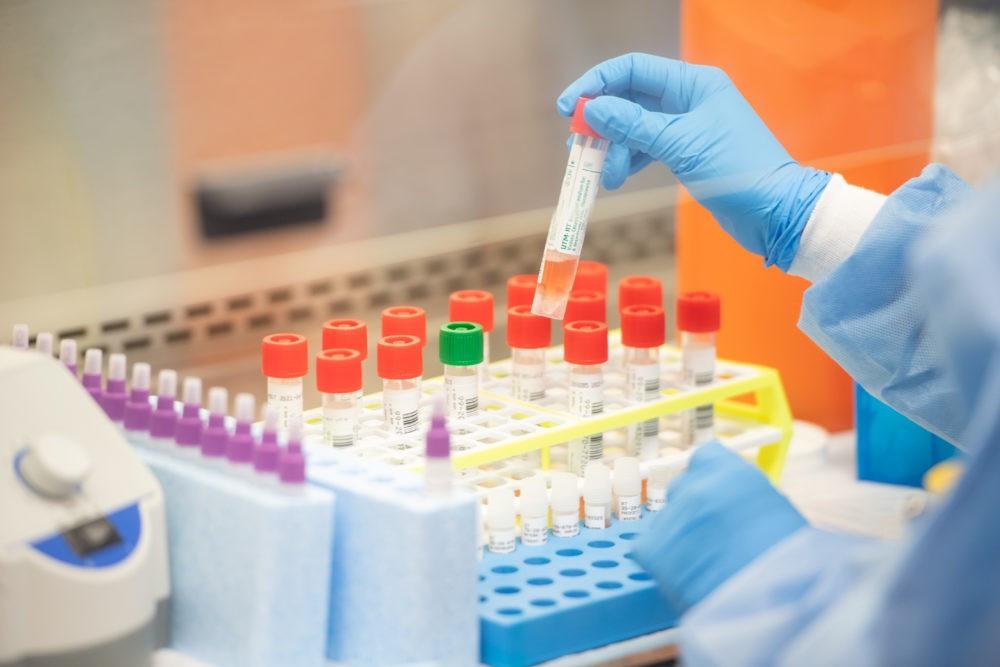 В Азербайджане еще 50 человек заразились COVID-19, 40 выздоровели