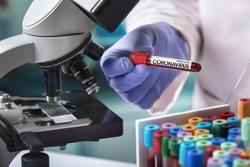 Коронавирус унес жизни более 18 тыс. человек