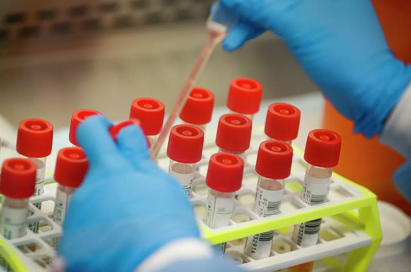 В Азербайджане обнаружен британский штамм коронавируса